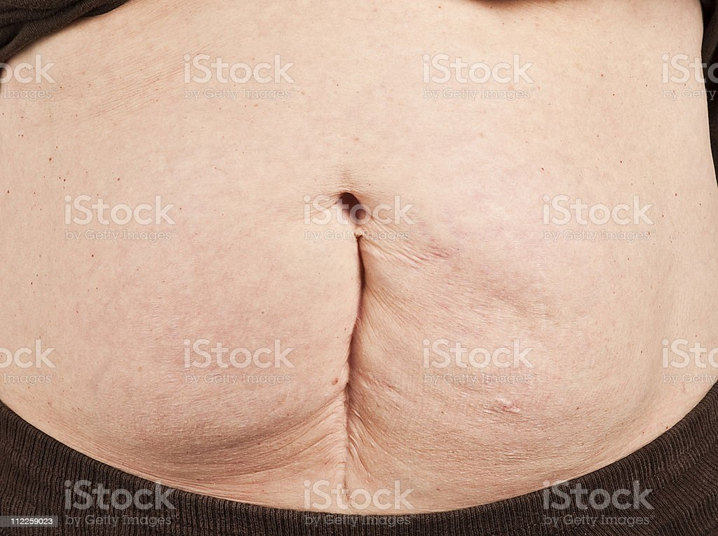 cesearean section royalty-free stock photo
