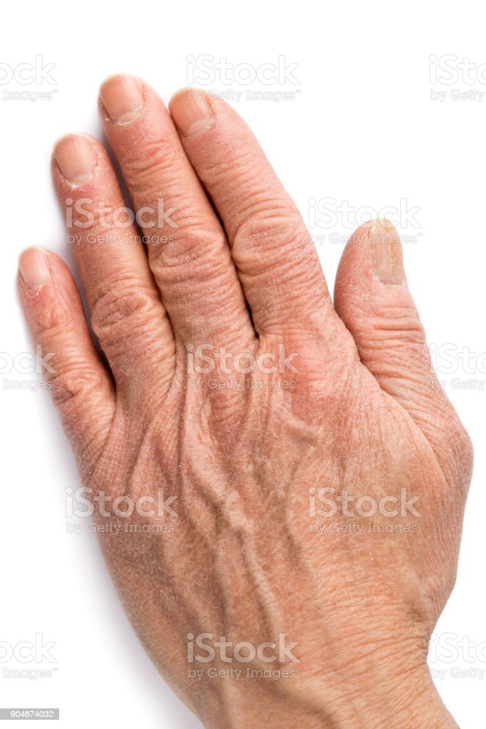 Chapped dry left hand on white background stock photo