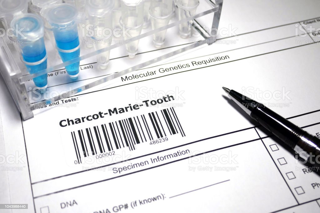 Charcot–Marie–Tooth disease stock photo