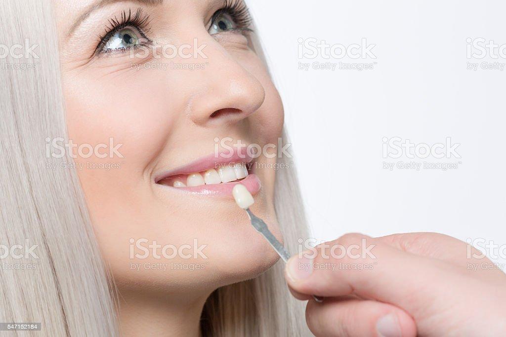check veneer of tooth crown stock photo