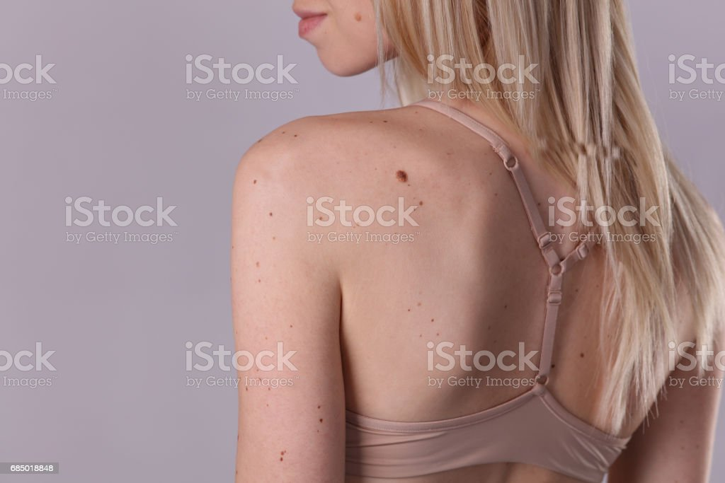 Checking benign moles : Beautifull Woman with birthmarks on her back and face. Laser skin tags removal stock photo
