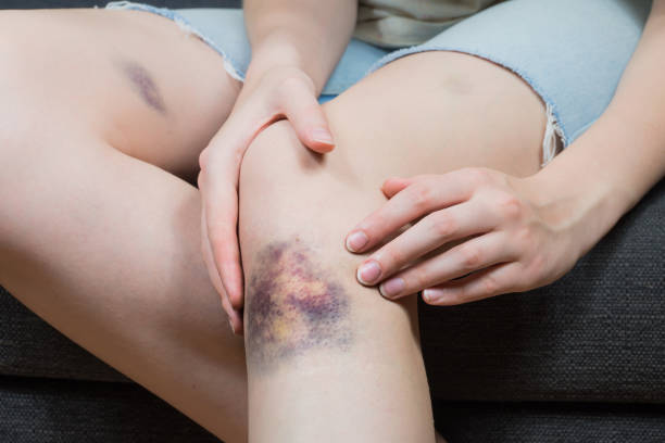 Checking bruise injury on young woman knee stock photo