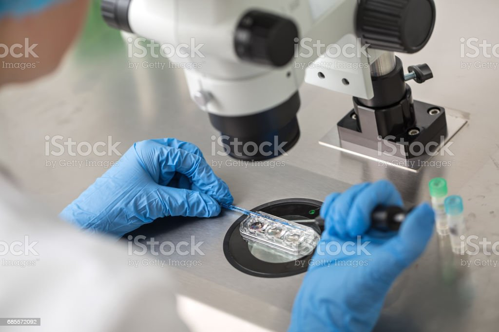 Checking result of in vitro fertilization stock photo