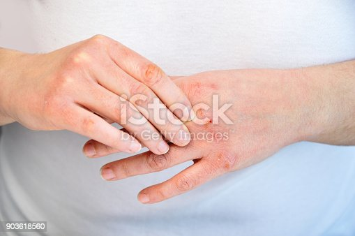 istock checking the hand 903618560