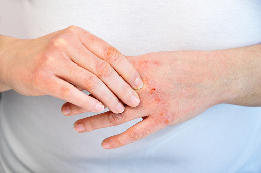 Woman checking the hand with very dry skin and deep cracks