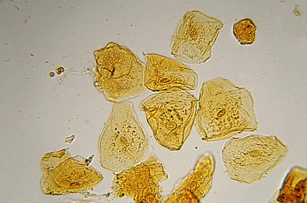 cheek cells micrograph stock photo