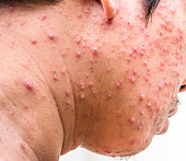 Hiv Rash Pictures Stock Photos - Free Hiv Rash Pictures