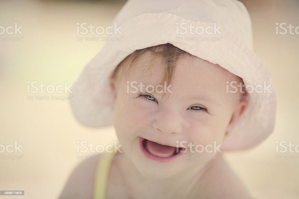 cheerful little baby girl with Downs Syndrome stock photo