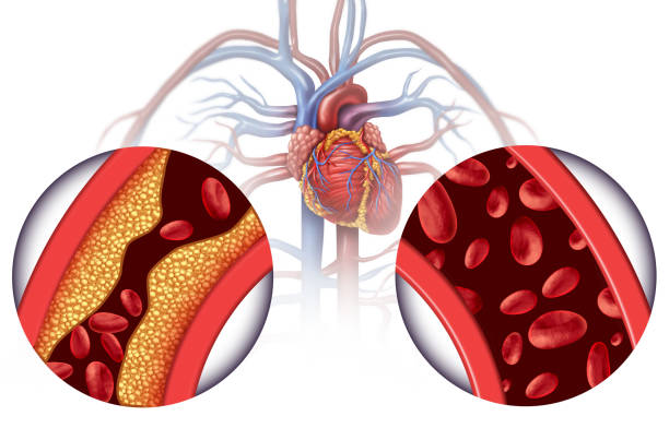 Chelation Therapy stock photo