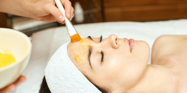 chemic facial and body peel. cosmetology acne treatment. young girl at medical spa salon - chemical peel stock pictures, royalty-free photos & images