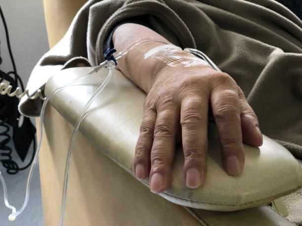 chemo 치료 - 화학 요법 치료제 뉴스 사진 이미지