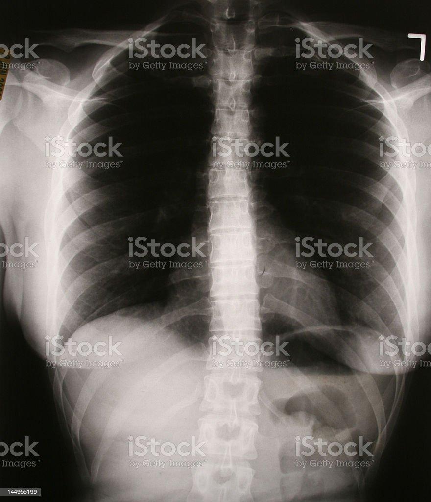 Großzügig C Wirbelsäule X Ray Anatomie Zeitgenössisch - Menschliche ...
