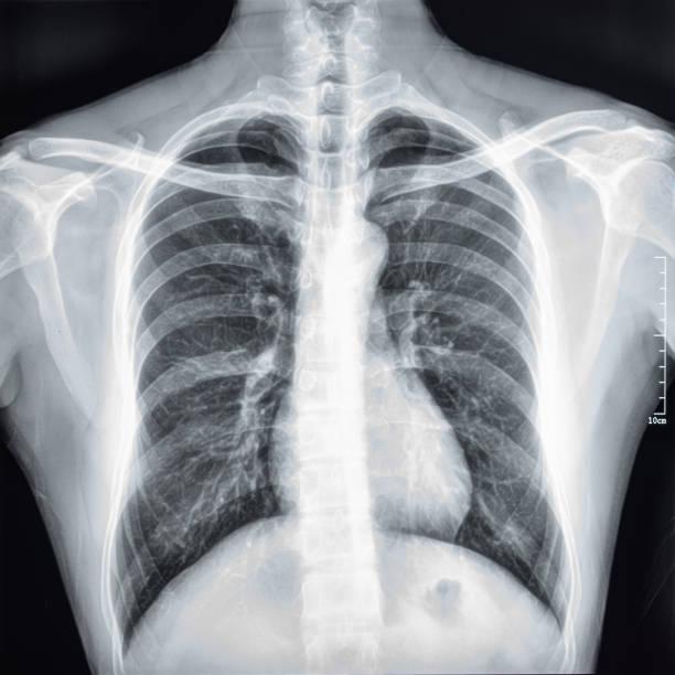 Brust-CT Scan film – Foto