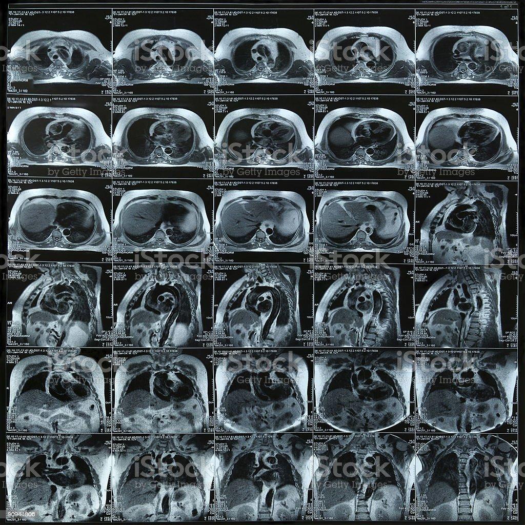 Chest magnetic resonance imaging stock photo