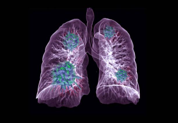CT Brust oder Lunge 3D Rendering Bild mit Virus 3D-Rendering auf schwarzem Hintergrund für diagnose TB, Tuberkulose und covid-19 . – Foto