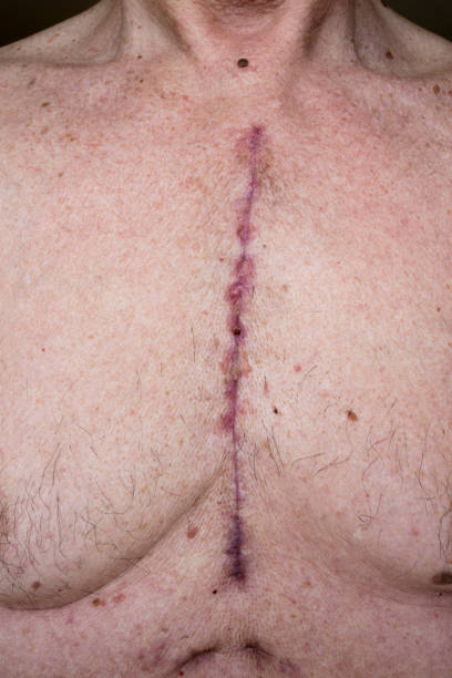 Chest scars one month after heart surgery Shows where sternum was cut and chest drains were inserted in a 66 year old male after open heart surgery scar stock pictures, royalty-free photos & images