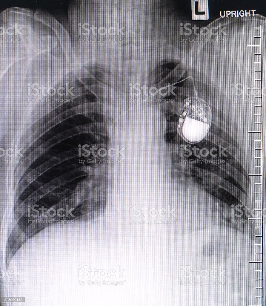 chest with the pacemaker on x-ray film stock photo