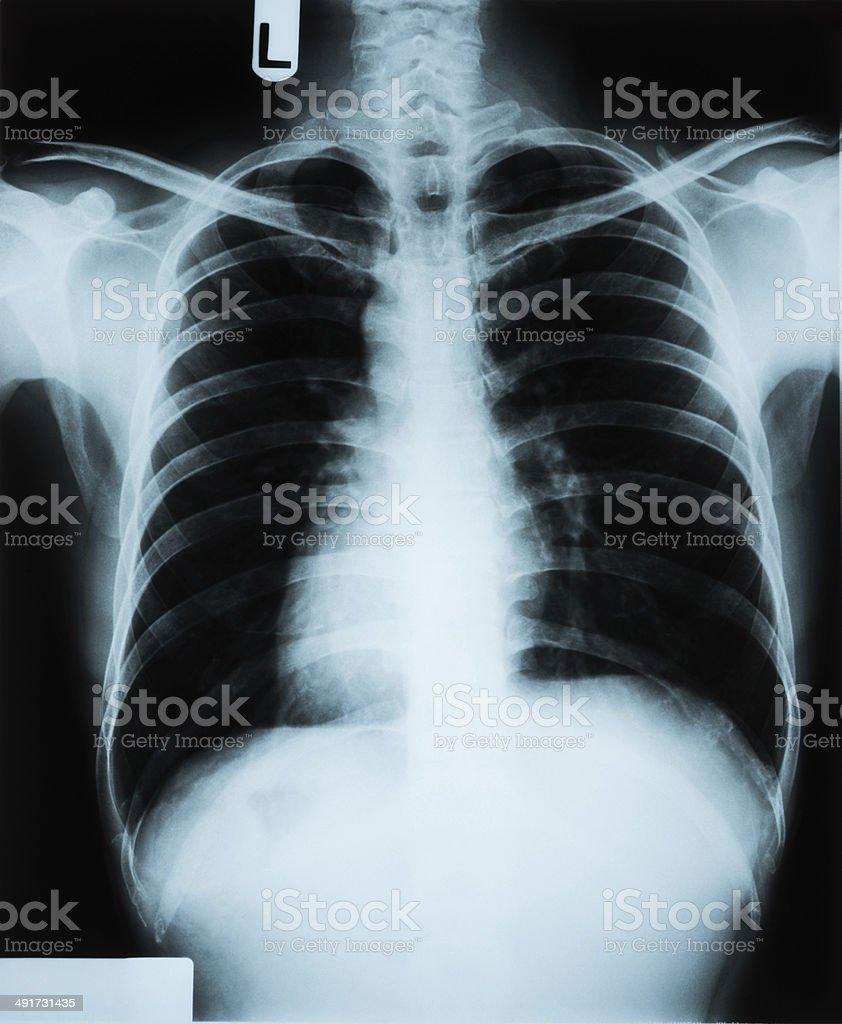 Xray Brust Stock-Fotografie und mehr Bilder von Anatomie   iStock