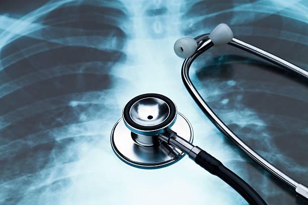 Brust X-Ray und Stethoskop. – Foto