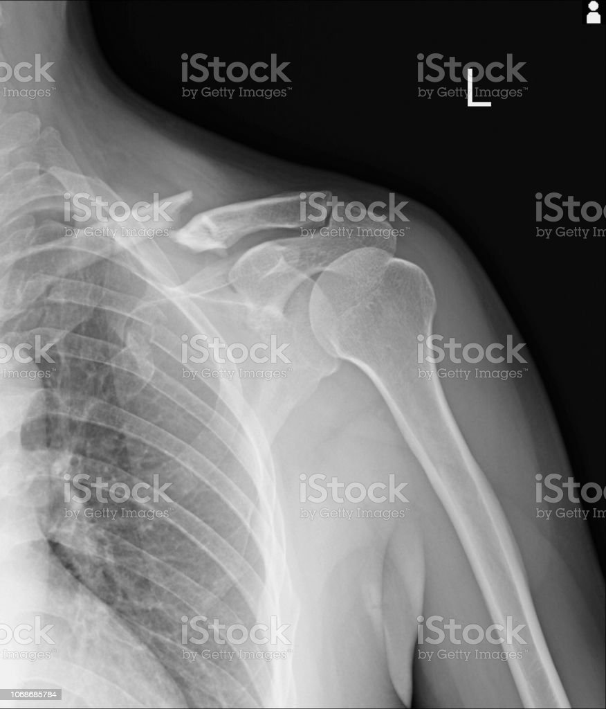 Chest x-ray Fractures left clavicle, anterior 2nd rib, posterior rib...