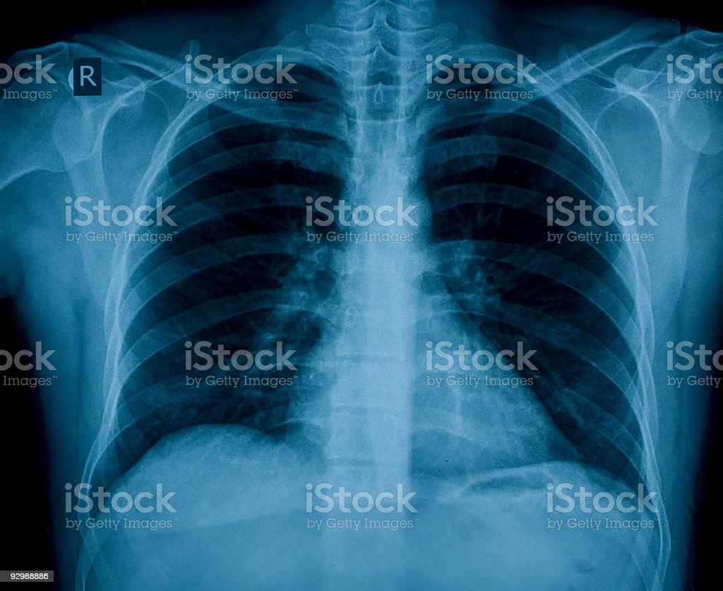 Chest X-ray image for physician's examination stock photo