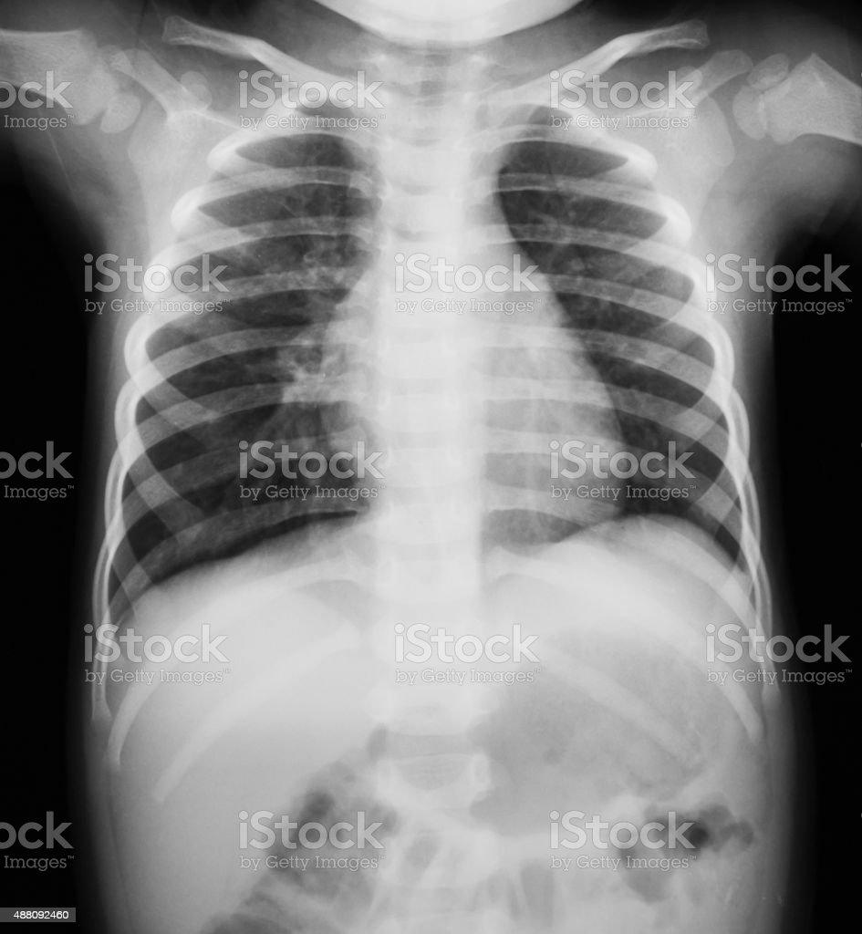 Brust Xray Bild Eines Jungen Der - Stockfoto | iStock