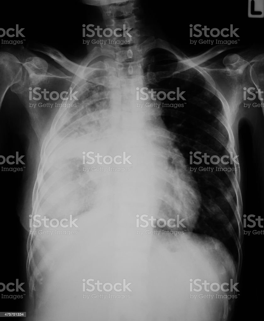 Chest Xray Image Of Lung Infection Stock Photo & More Pictures of ...
