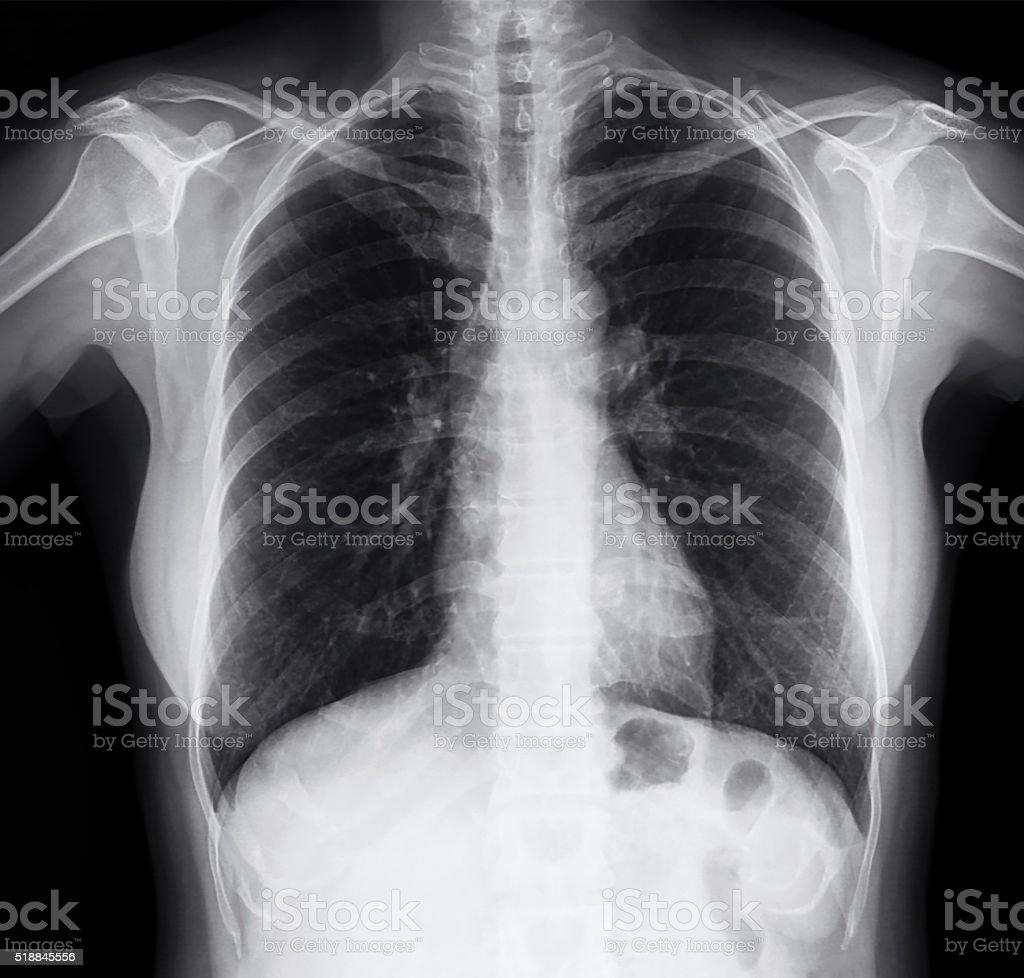 Brust Röntgenbild Der Frauen Stock-Fotografie und mehr Bilder von ...