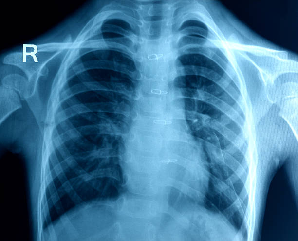 Chest X-ray image Chest X-ray image intercostal space stock pictures, royalty-free photos & images