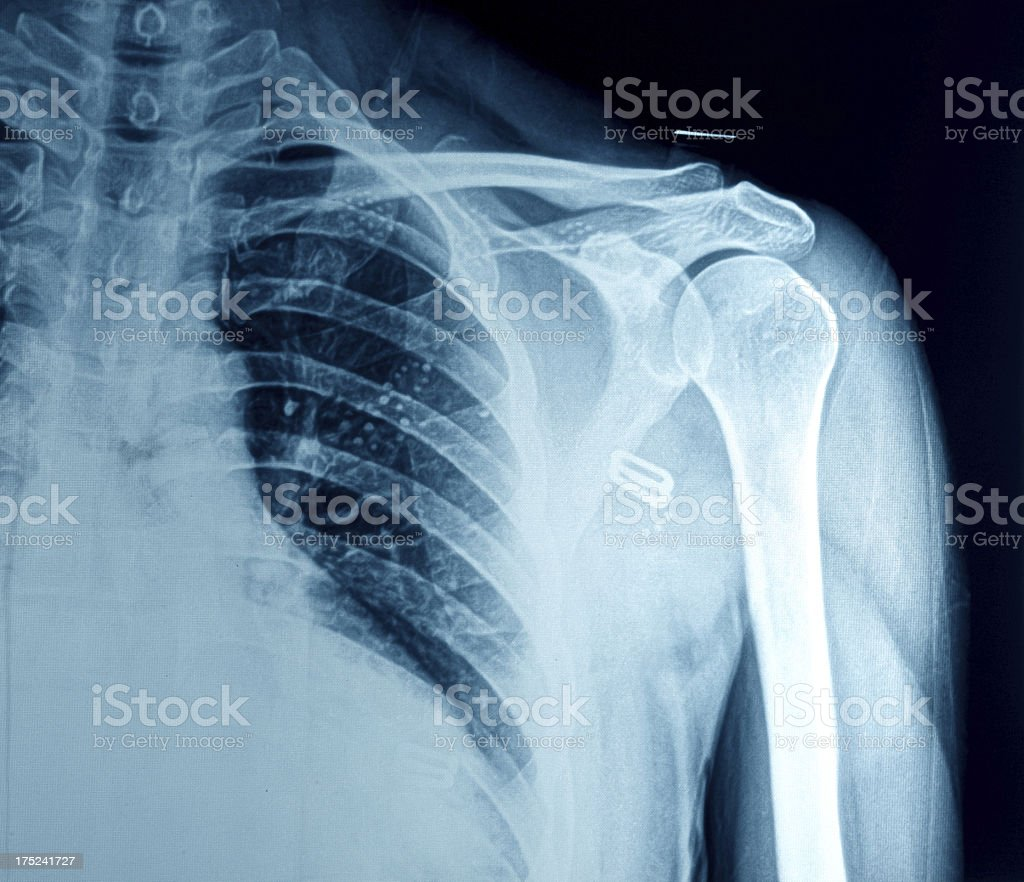 Röntgenbild Der Brust Stock-Fotografie und mehr Bilder von Anatomie ...