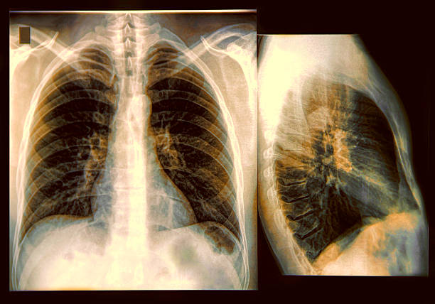 Chest X-ray Image X-Ray image if the human chest mucus stock pictures, royalty-free photos & images