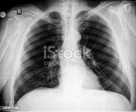 836113342istockphoto Chest X-ray image 490917190