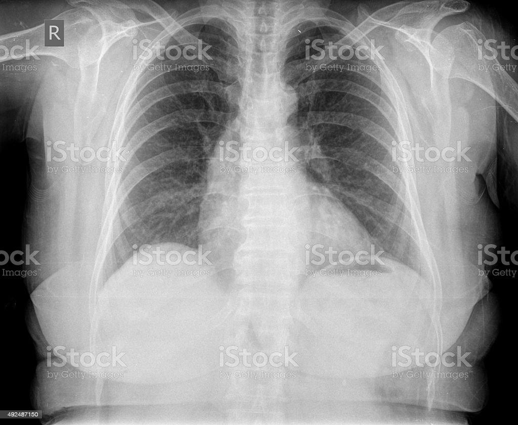 Röntgenbild Der Brust Stock-Fotografie und mehr Bilder von 2015 | iStock