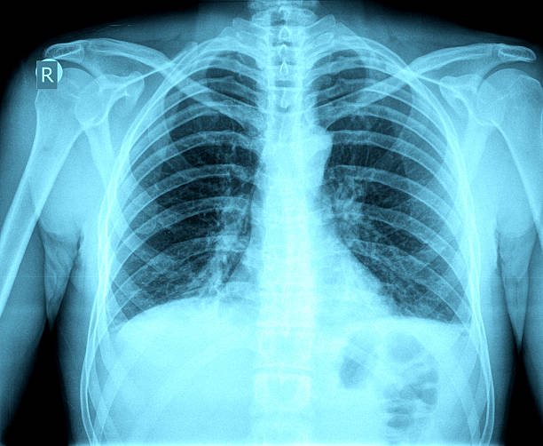 Chest X-ray image Chest X-ray image human rib cage stock pictures, royalty-free photos & images