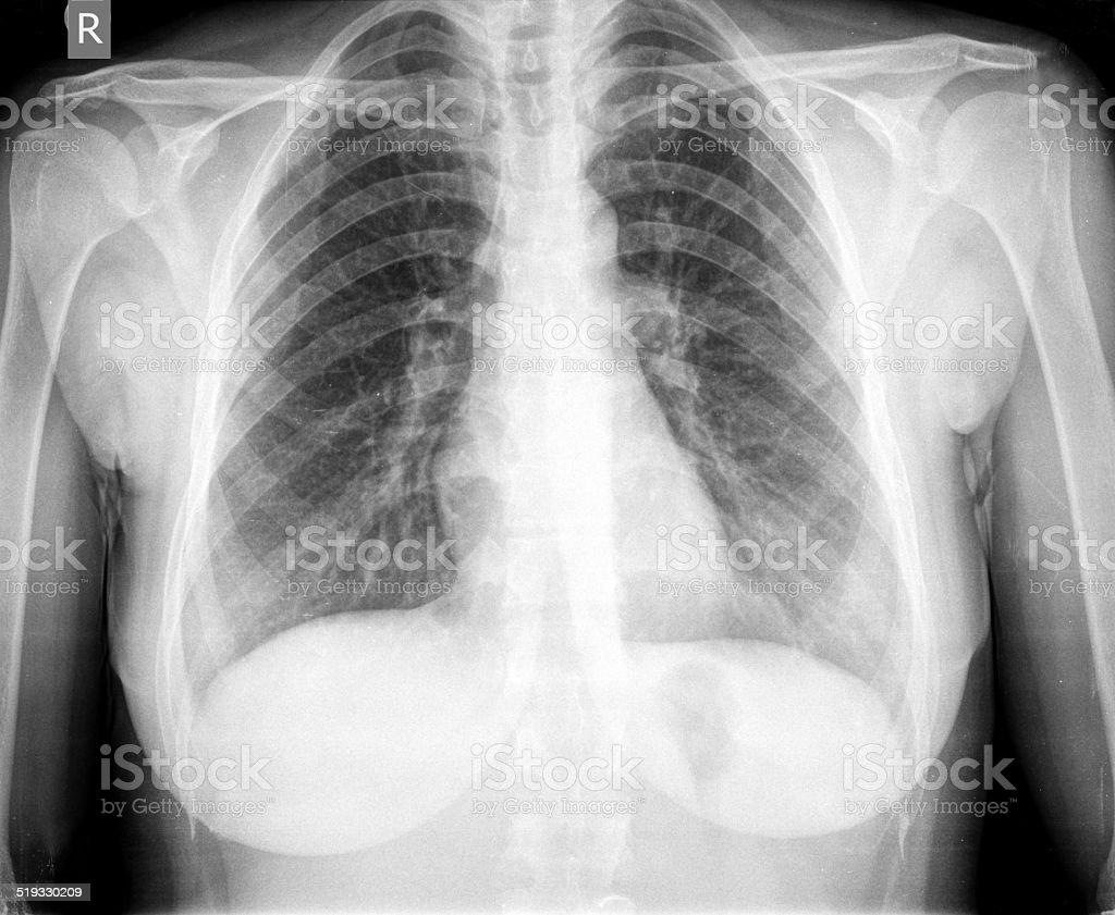 Ausgezeichnet Anatomie Des Brustbereich Zeitgenössisch - Menschliche ...