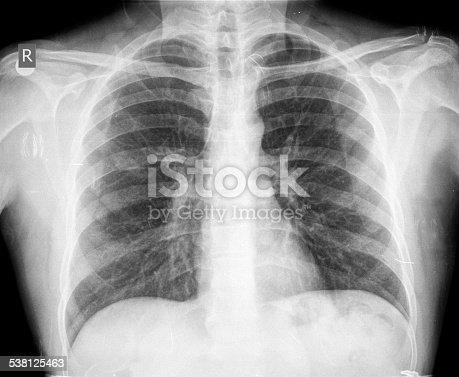 836113342istockphoto Chest X-ray image 538125463
