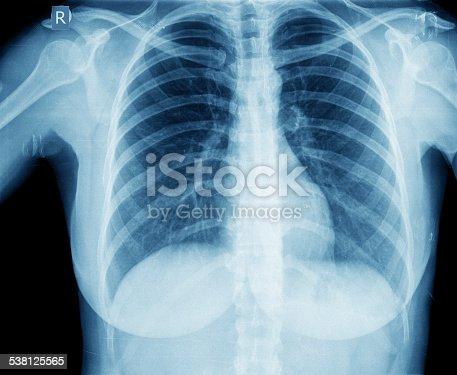 836113342istockphoto Chest X-ray image 538125565