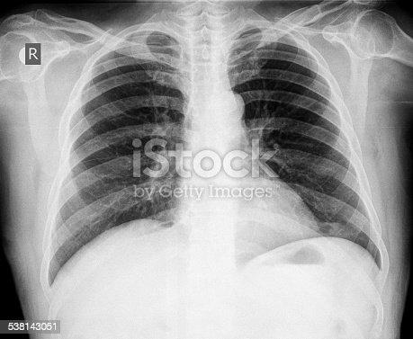 836113342istockphoto Chest X-ray image 538143051
