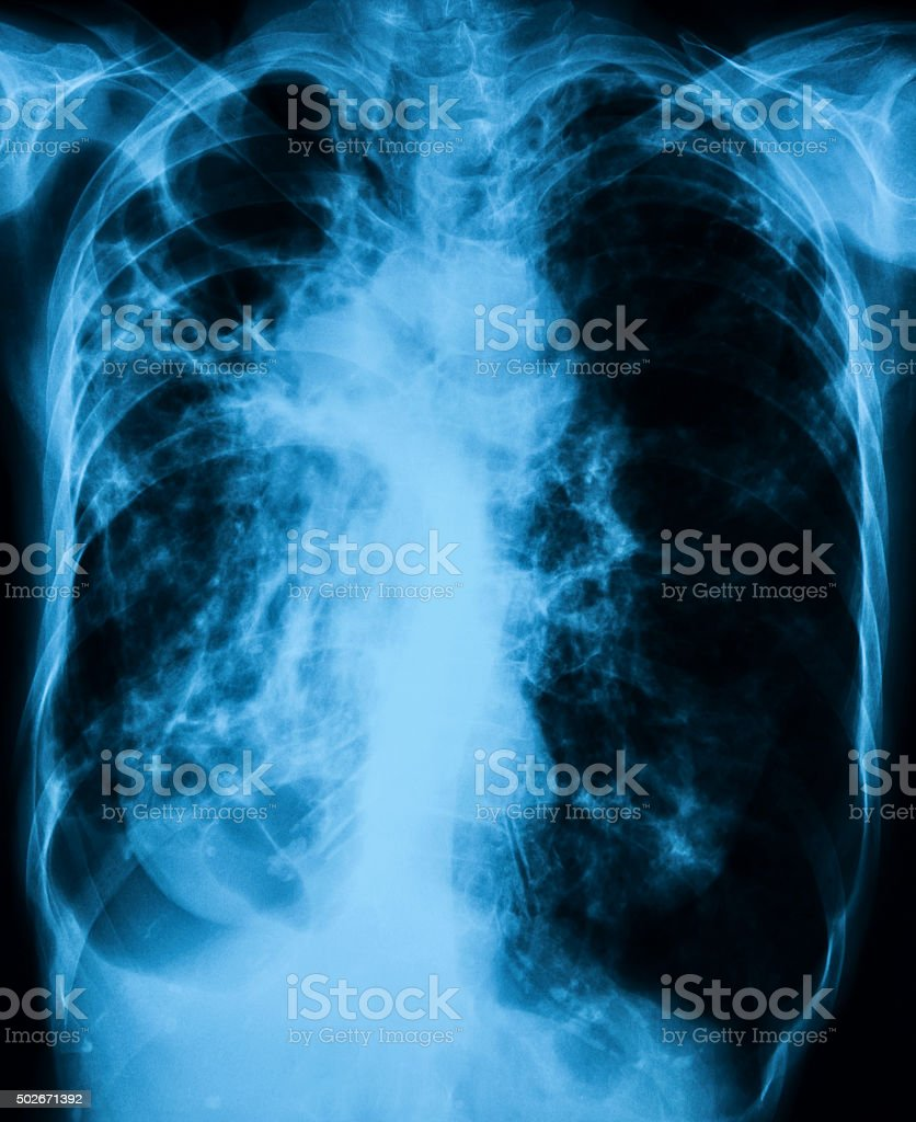 Chest x-ray image showing infection of lungs stock photo