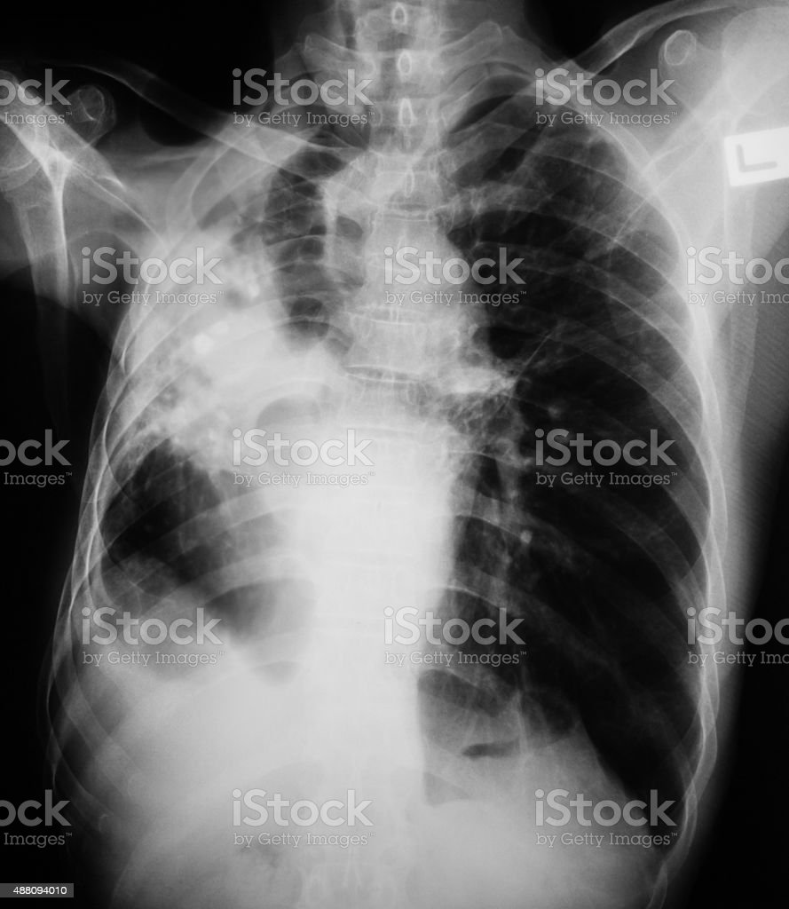 Chest x-ray image showing lung infection. stock photo