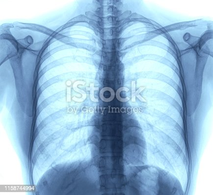 836113342 istock photo chest x-ray images 1158744994