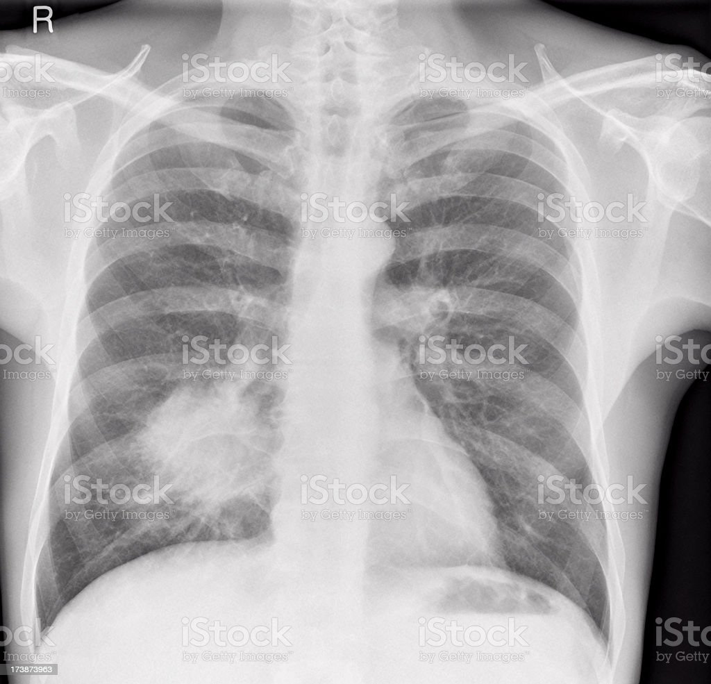 chest x-ray of lung cancer in a man royalty-free stock photo