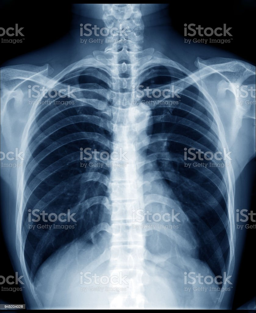 Chest Xray Of Normal Healthy Man Show Lung Heart Spine Clavicle