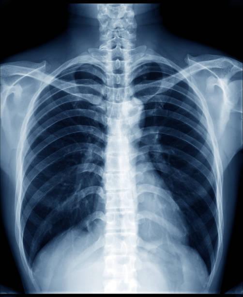 정상적인 건강 한 남자의 가슴 x 선 보여 폐, 심장, 척추, 쇄 골, 횡 경 막 - 엑스레이 이미지 뉴스 사진 이미지