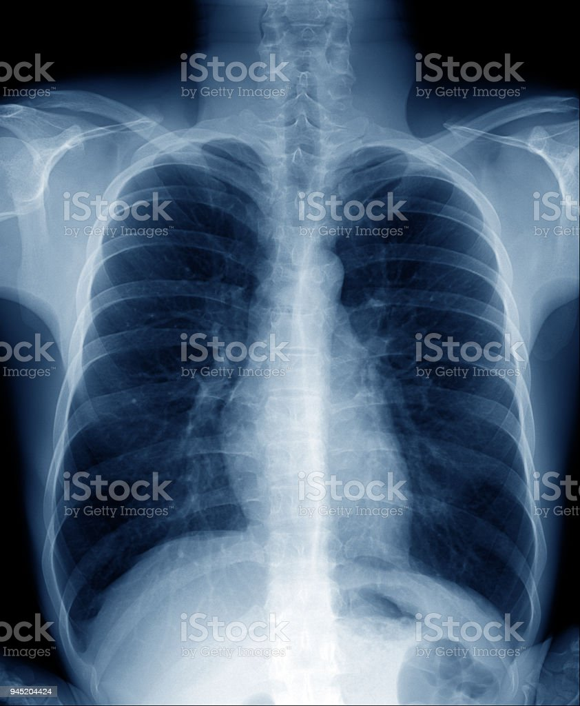 Chest Xray Of Normal Healthy Man Show Lung Heart Spine Clavicle ...