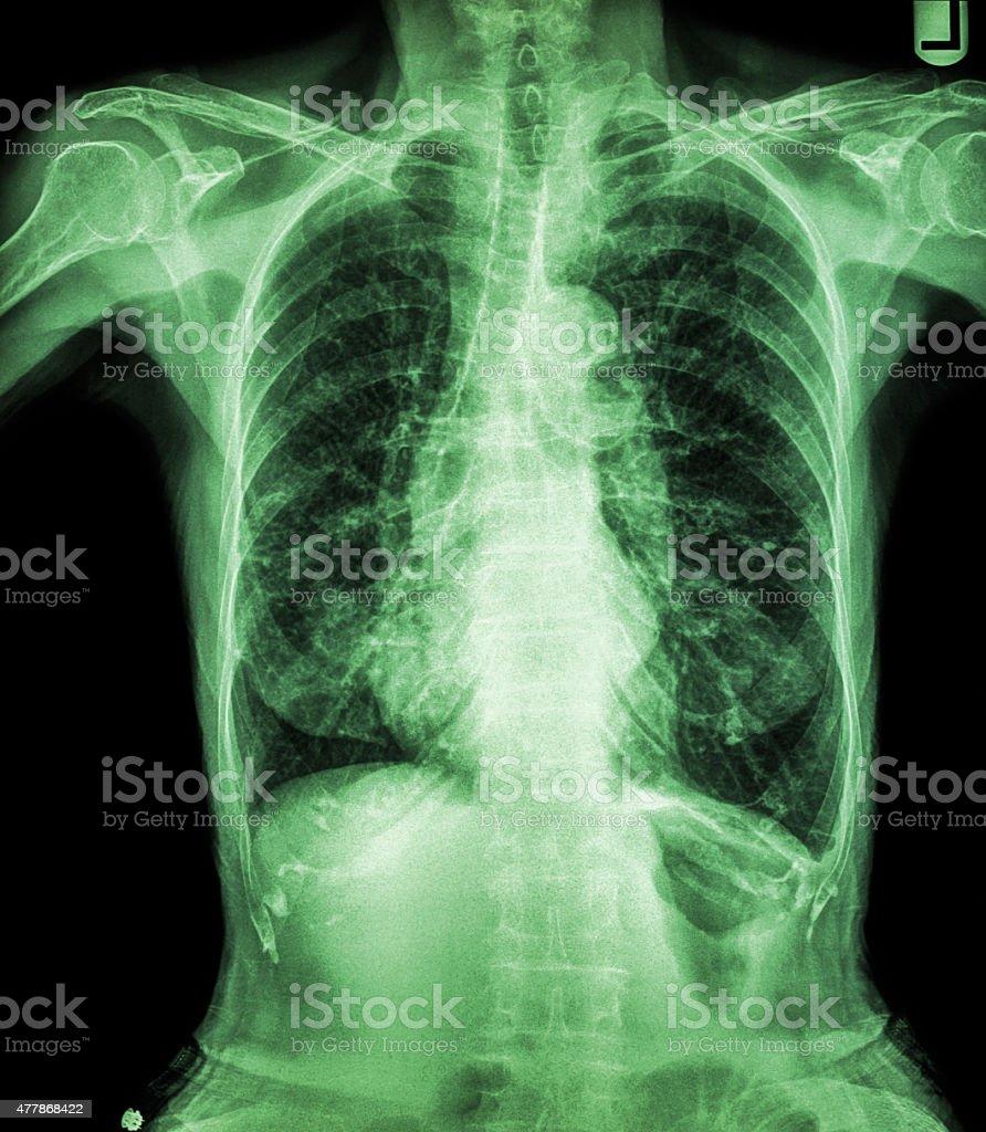 Fotografía de La Radiografía De Tórax Del Paciente y más banco de ...