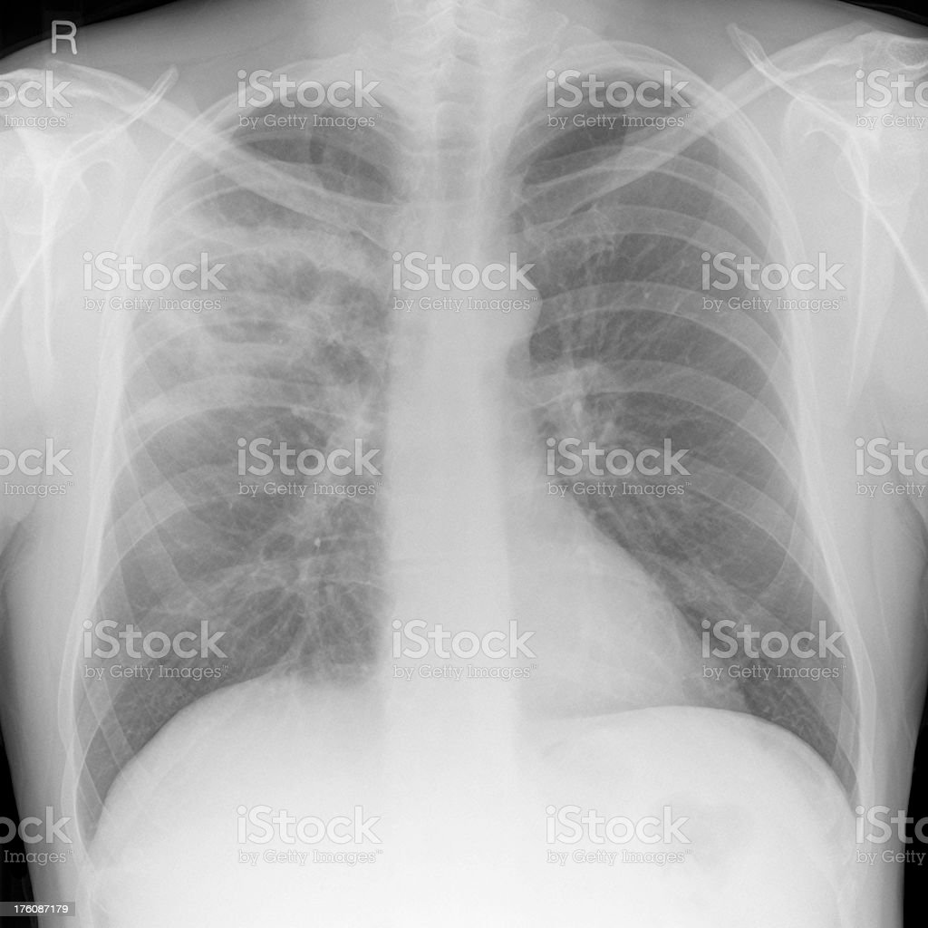 Chest Xray Of Severe Lung Infection With Abscess Stock Photo