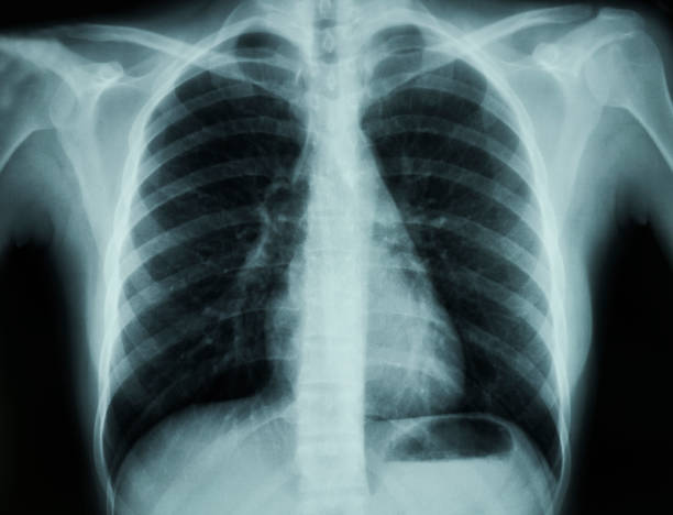 Chest X-ray Human chest X-ray image. human rib cage stock pictures, royalty-free photos & images