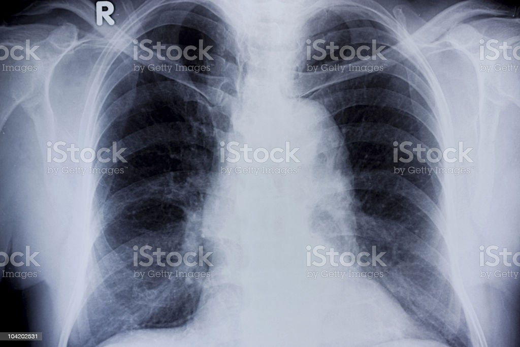Chest X-Ray royalty-free stock photo