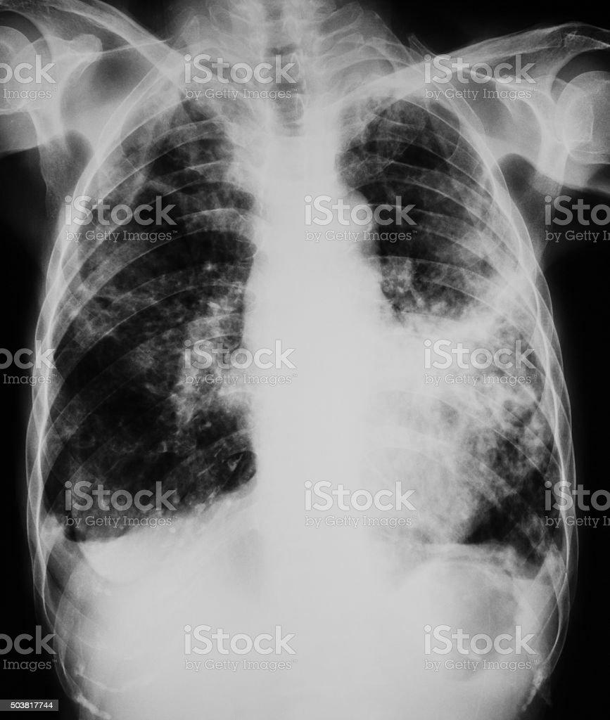 chest x-rays show advanced pulmonary tuberculosis stock photo
